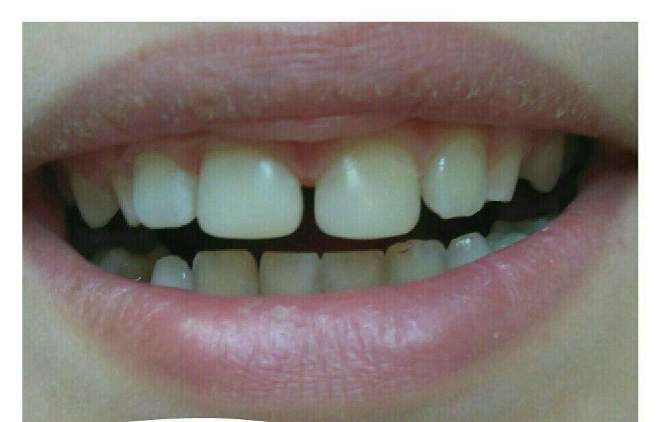 Виниры для эстетического протезирования зубов